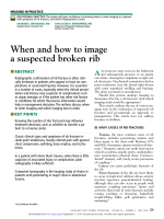 When and how to image a suspected broken rib - Cleveland Clinic