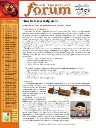 How to assess scalp laxity - US Hair Restoration