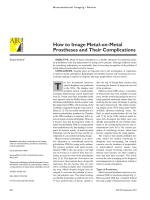 How to Image Metal-on-Metal Prostheses and Their Complications