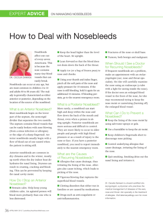 How to deal with nosebleeds - PageSuite