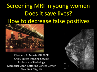 Screening MRI in young women Does it save lives? How to